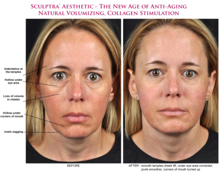 Something arizona collagen facial injection sorry, that